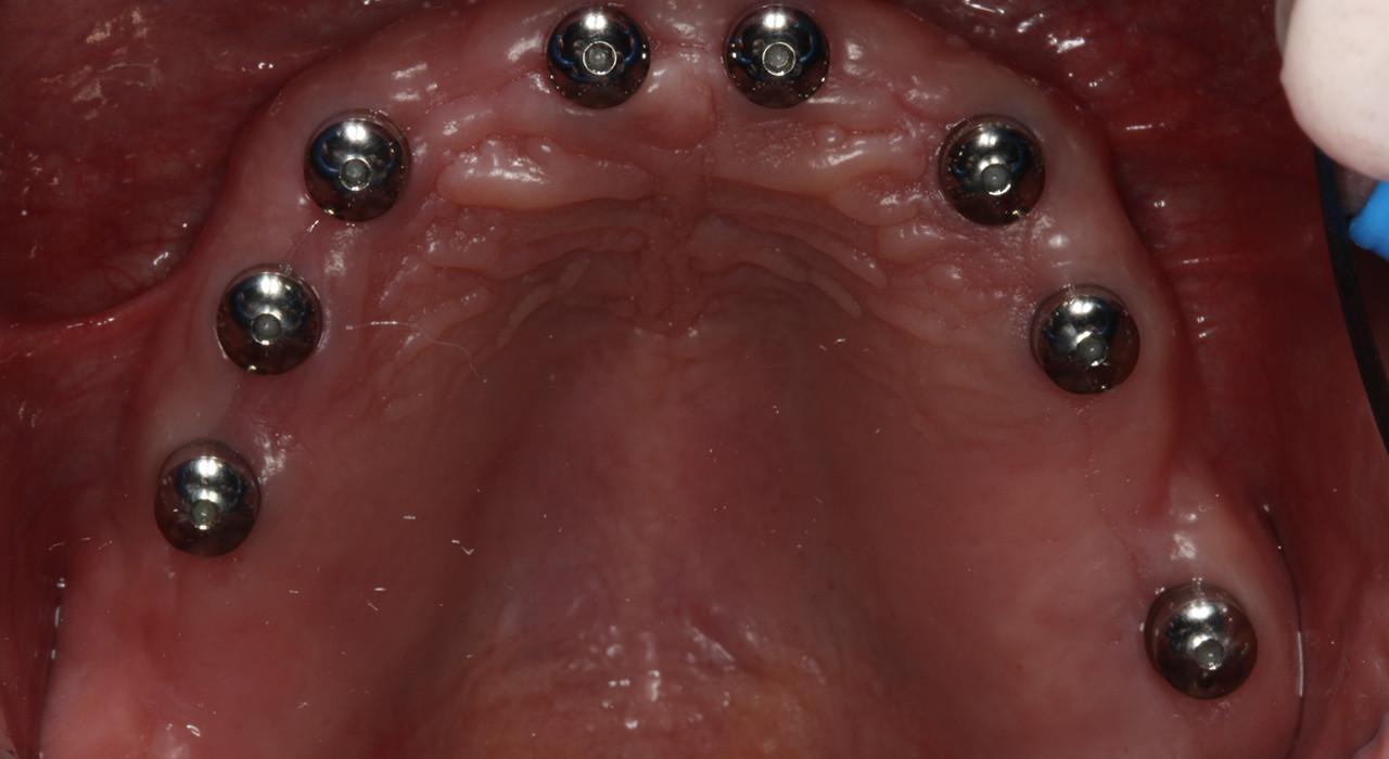 Posgrado en Implantoprótesis