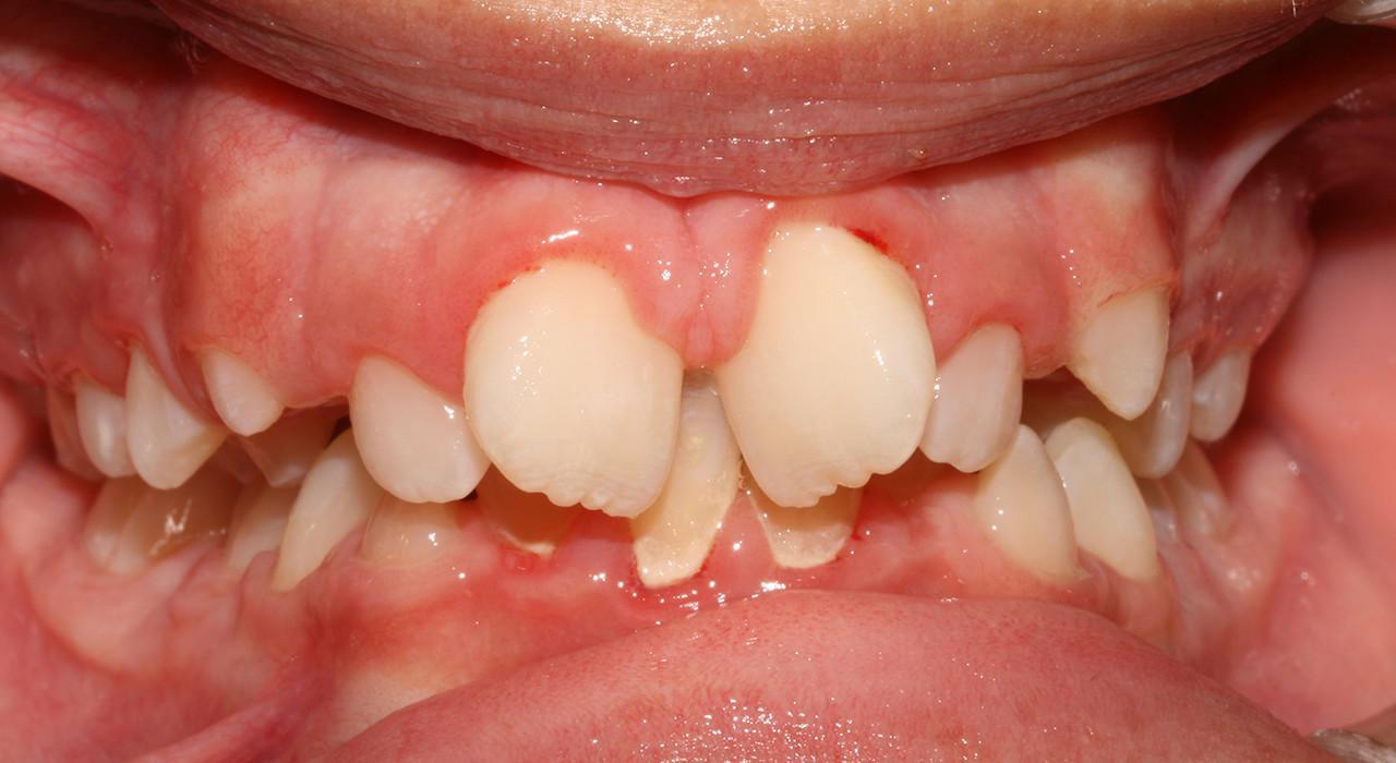 Especialización en Ortodoncia Avanzada