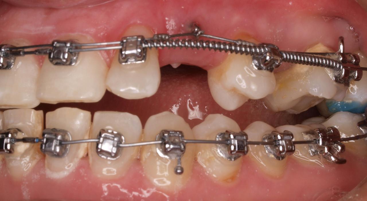 Postgrado en Ortodoncia Avanzada