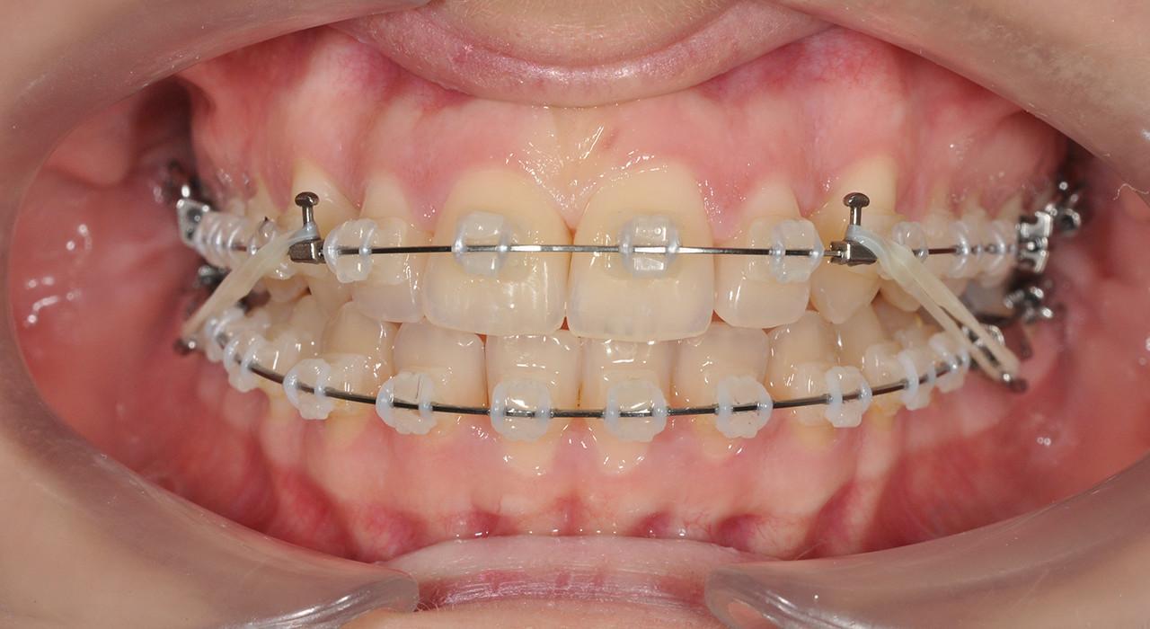 Especialización en Ortodoncia Clínica