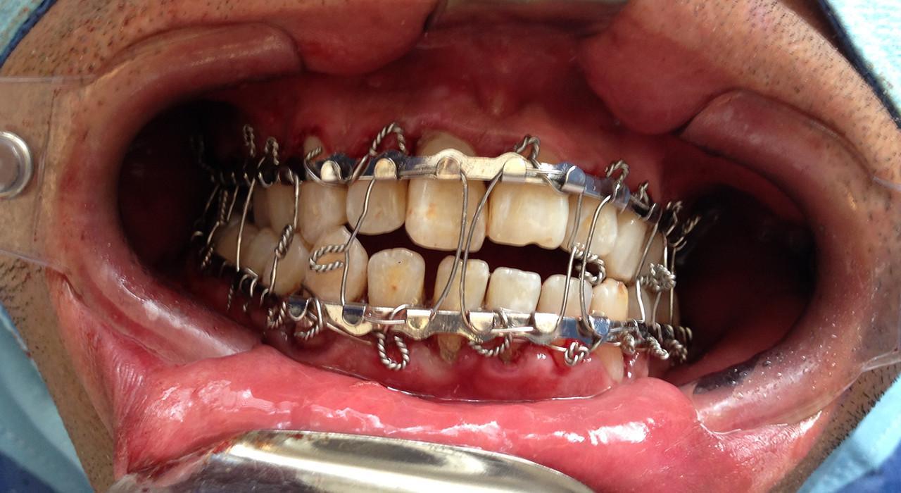 Posgrado en Ortodoncia y Cirugía Ortognática