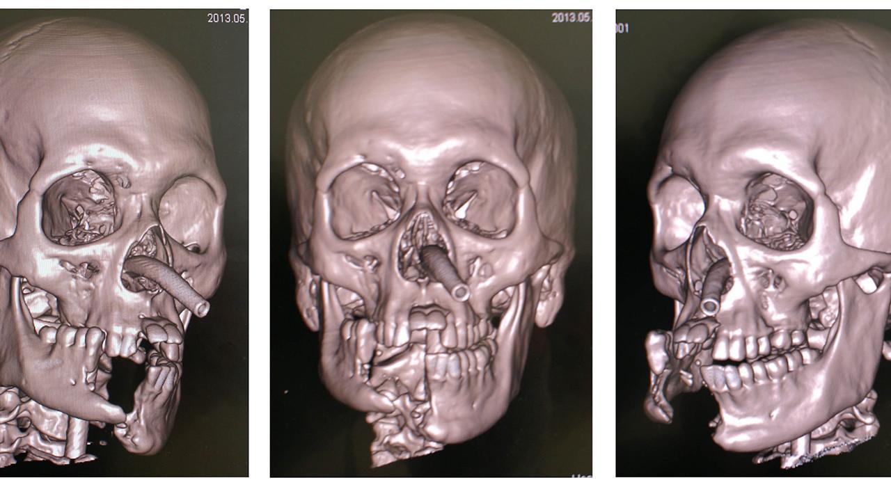 Postgrado en Ortodoncia y Cirugía Ortognática