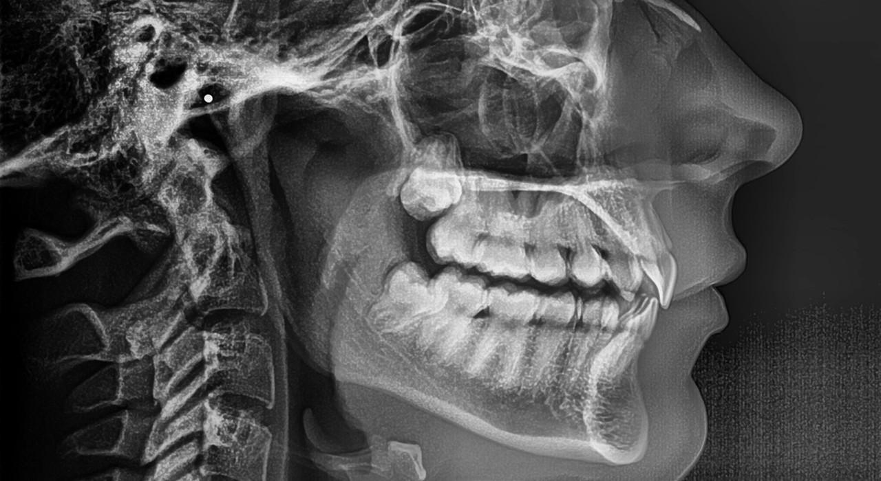 Formación en Ortodoncia y Cirugía Ortognática