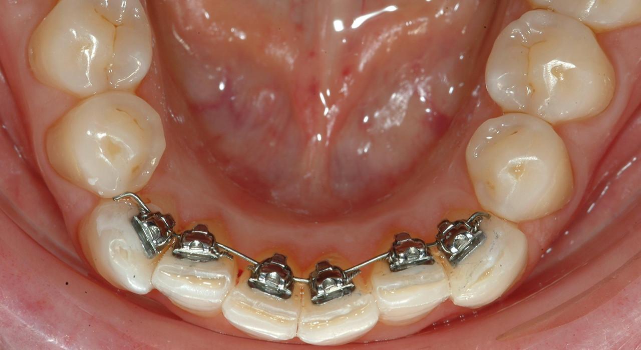Especialización en Ortodoncia Lingual