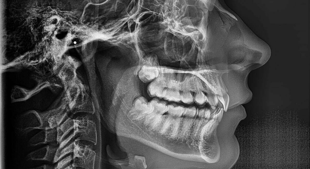 Posgrado en Ortodoncia Lingual