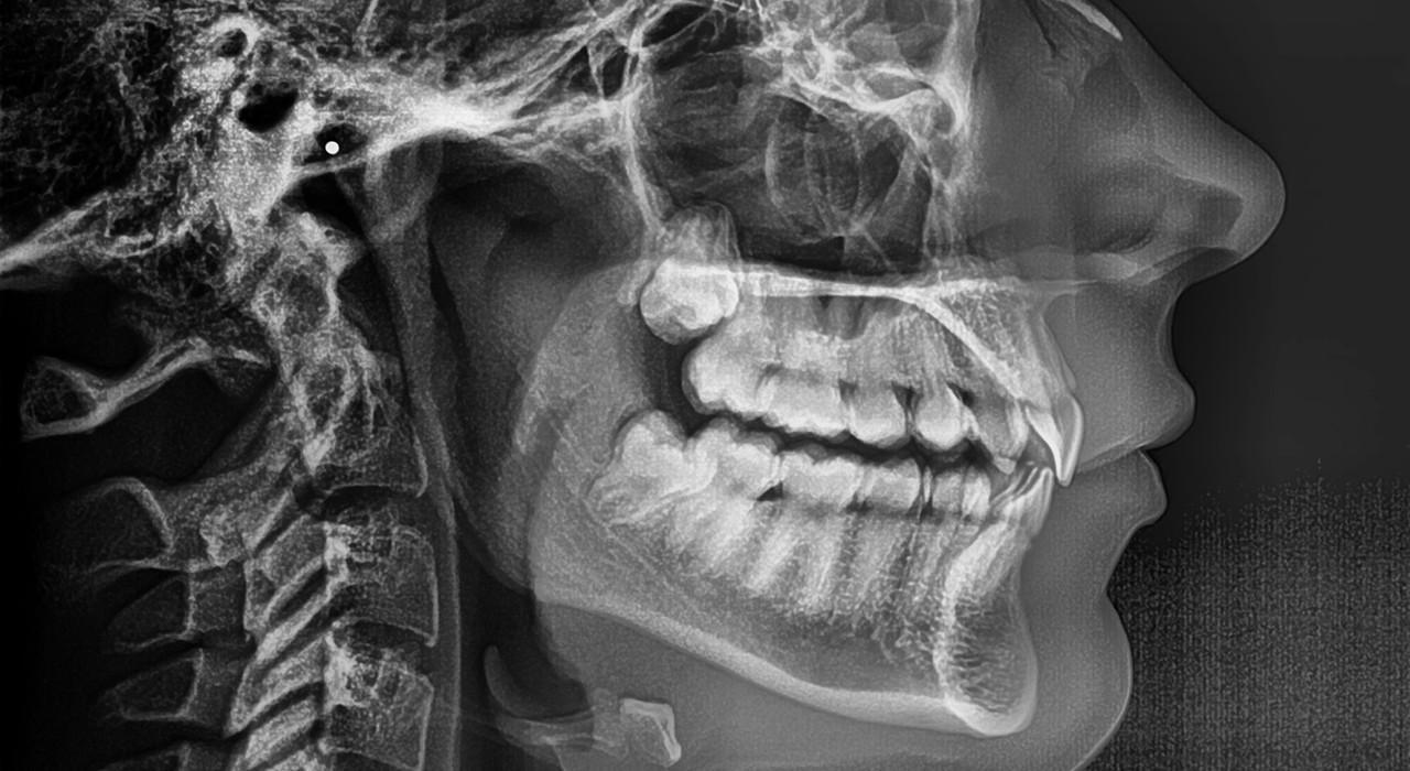 Posgrado en Ortopedia Dentofacial