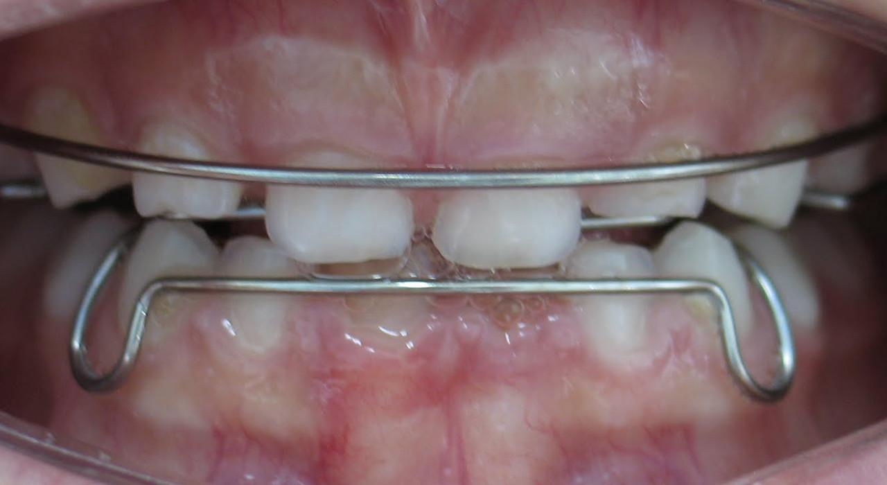 Postgrado en Ortopedia Dentofacial