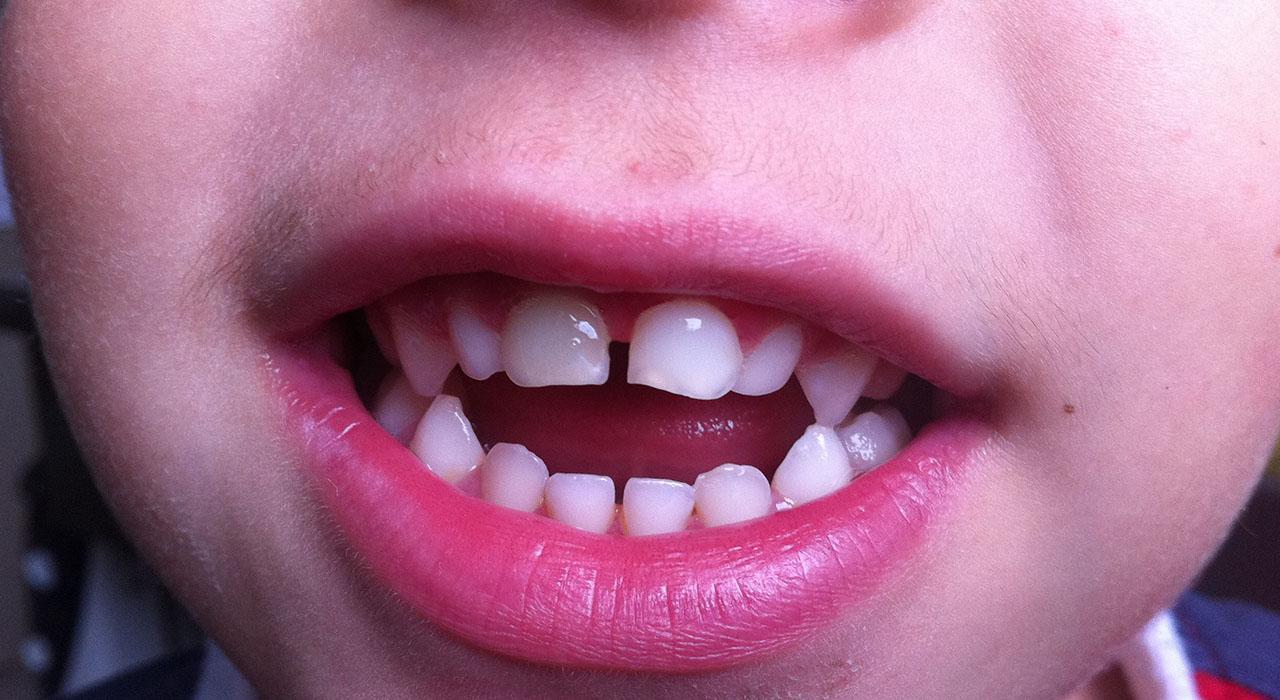 Especialización en Patología Oral y Maxilofacial Pediátrica
