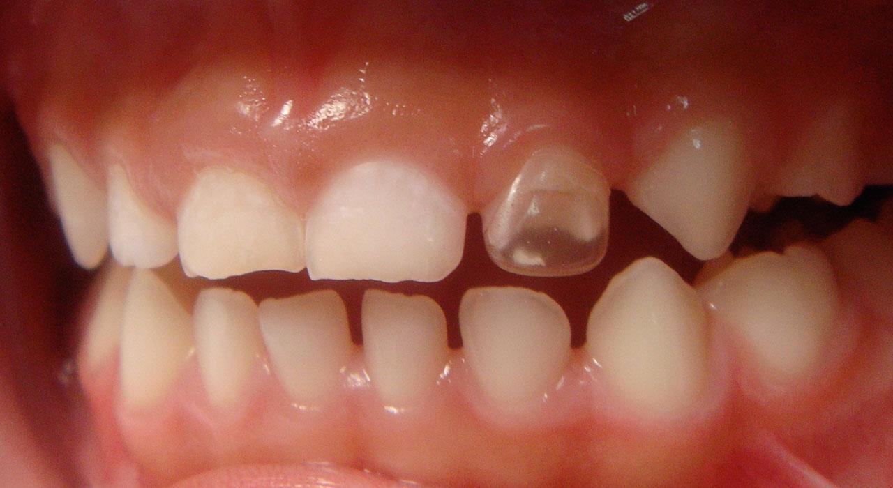 Posgrado en Patología Oral y Maxilofacial Pediátrica