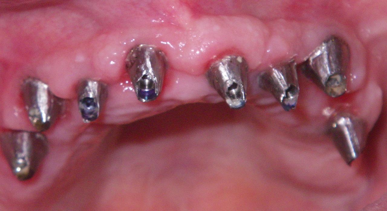 Especialización en Periodoncia Aplicada a la Implantología