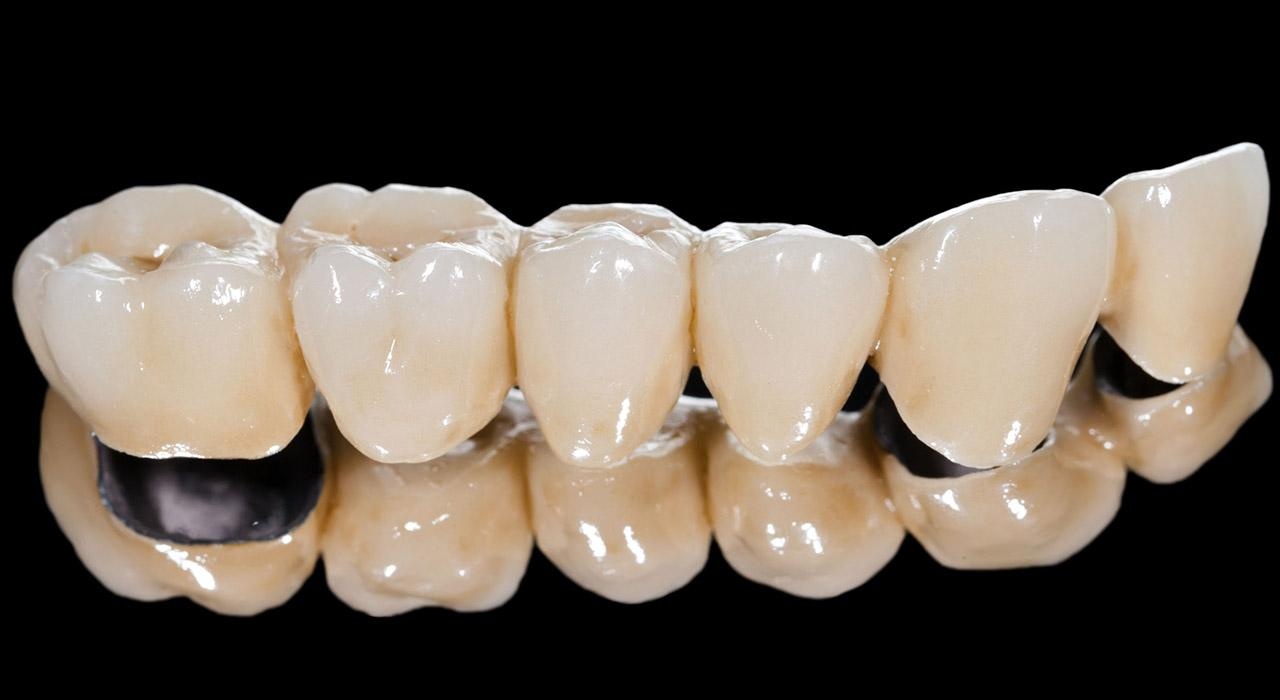Especialización en Rehabilitación Odontológica Mínimamente Invasiva con Porcelana