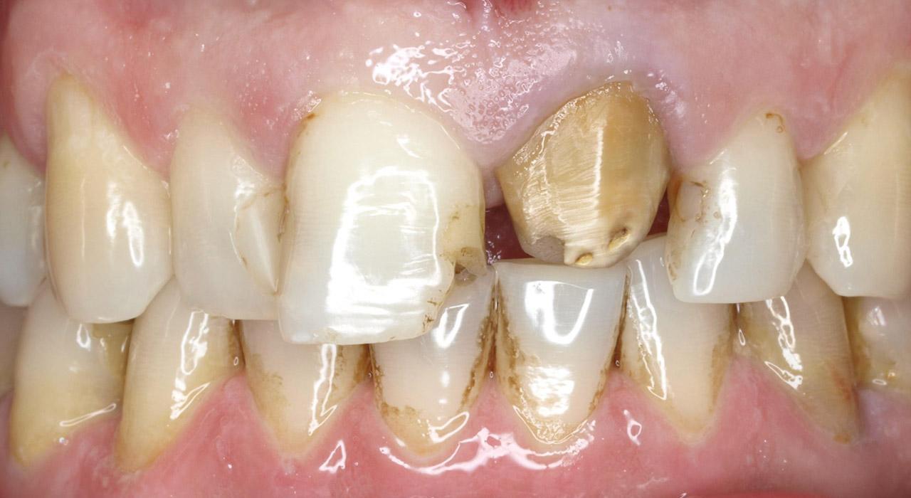 Postgrado en Rehabilitación Odontológica Mínimamente Invasiva con Porcelana