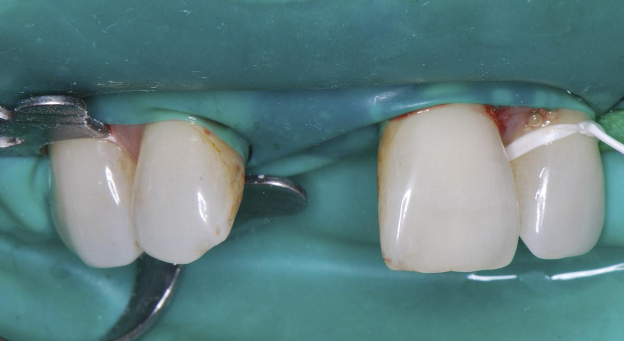 Especialización en Odontología Restauradora y Rehabilitación Directa del Sector Anterior