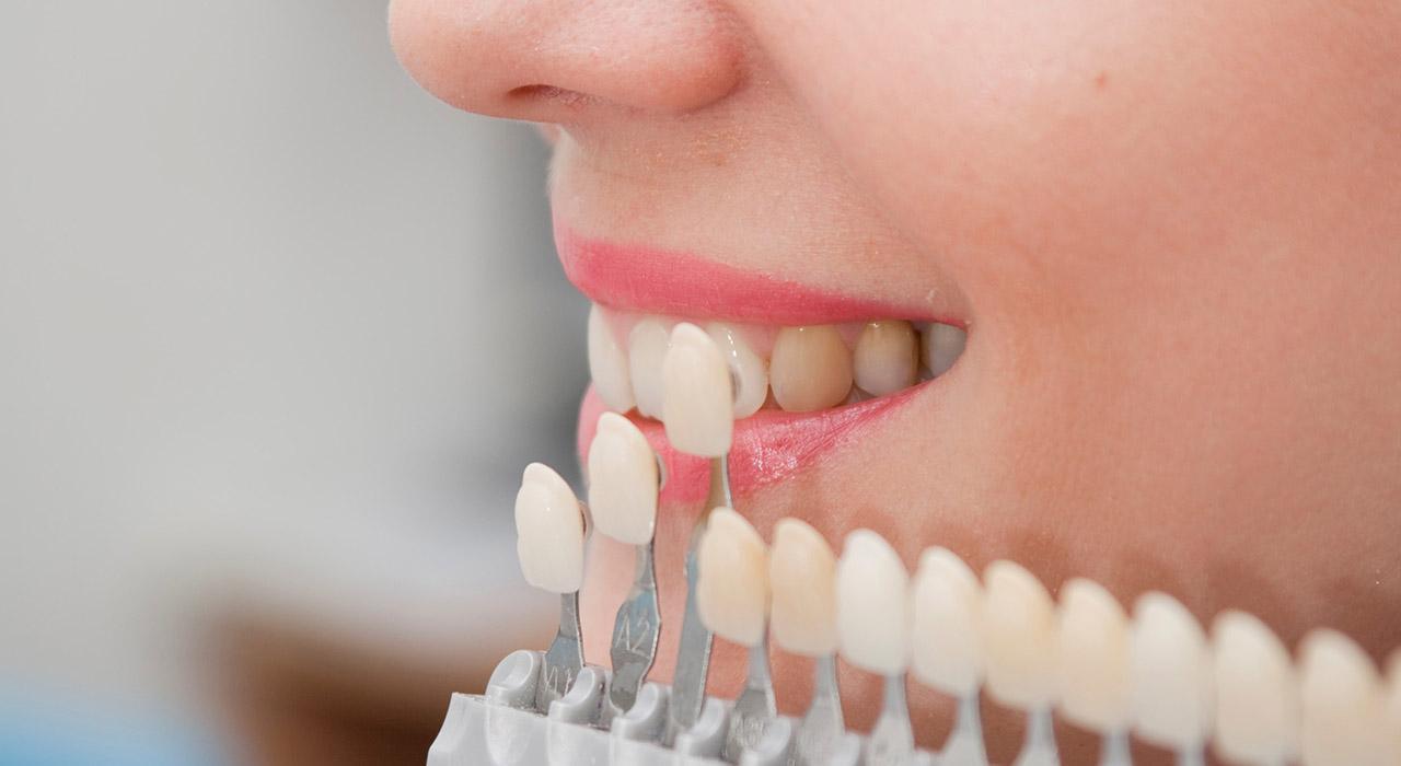 Posgrado en Odontología Restauradora y Rehabilitación Directa del Sector Anterior