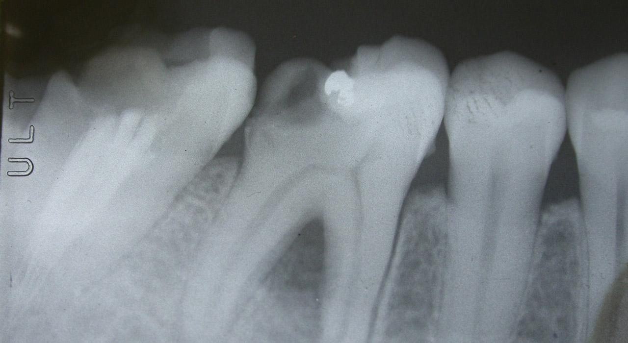 Especialización en Retratamiento del diente endodonciado