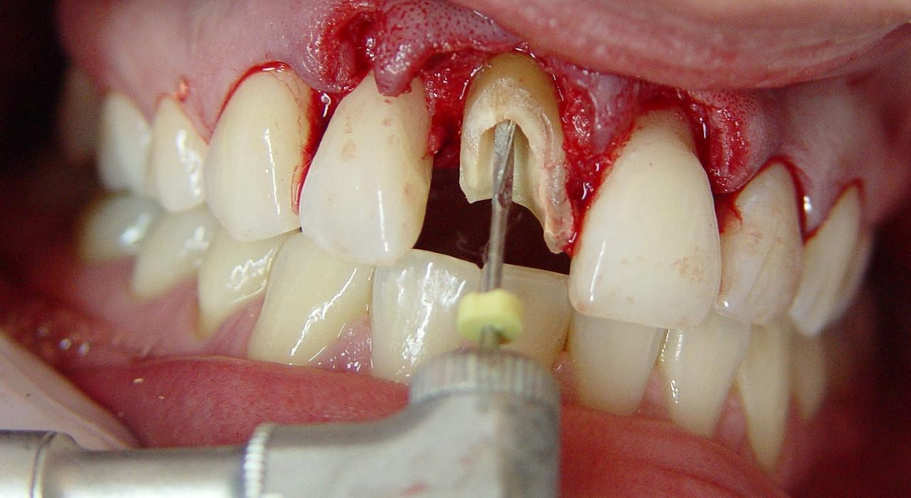 Magister en Endodoncia y Microcirugía Apical