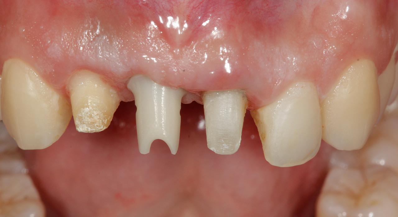 Magister en Odontología Estética Adhesiva