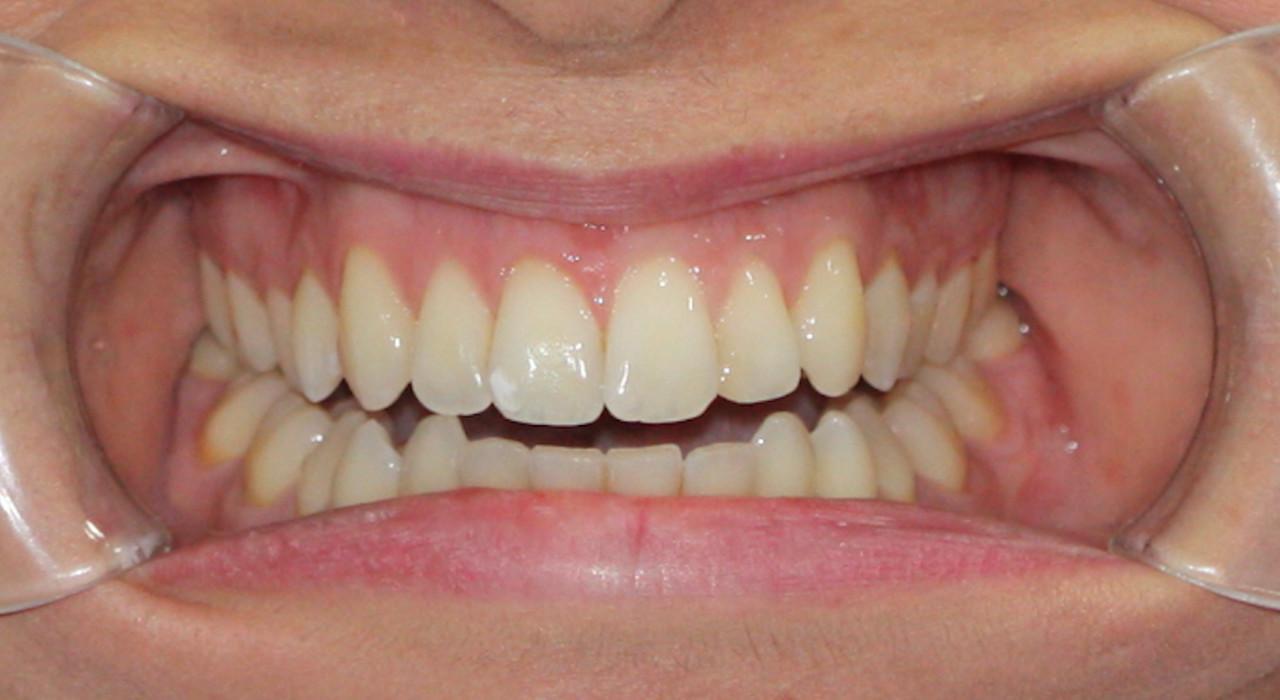 Postgrado en Odontología Estética Adhesiva