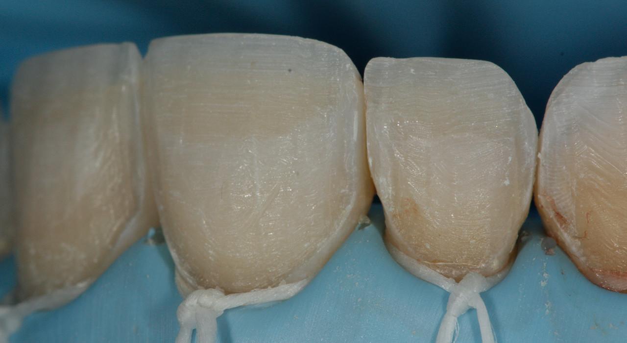 Formación en Odontología Estética Adhesiva