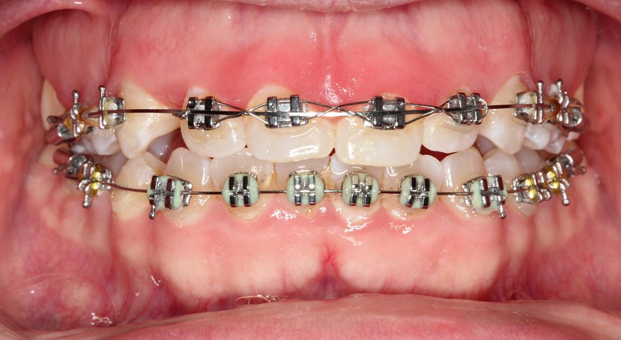 Magister en Ortodoncia y Ortopedia Dentofacial