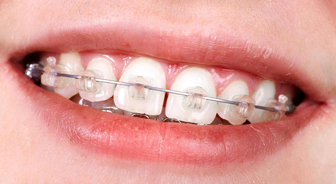 Maestría en Ortodoncia y Ortopedia Dentofacial