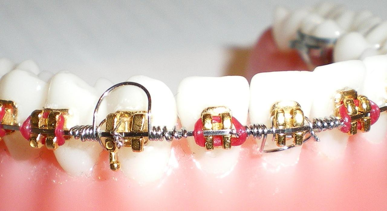 Postgrado en Ortodoncia y Ortopedia Dentofacial