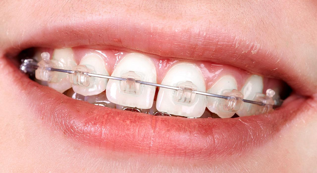Maestría en Ortopedia Dentofacial