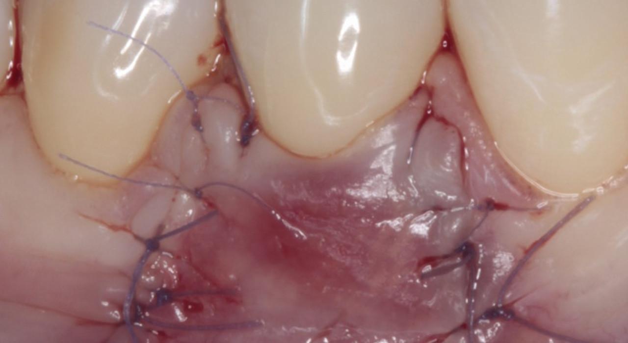 Posgrado en Periodoncia y Cirugía Mucogingival