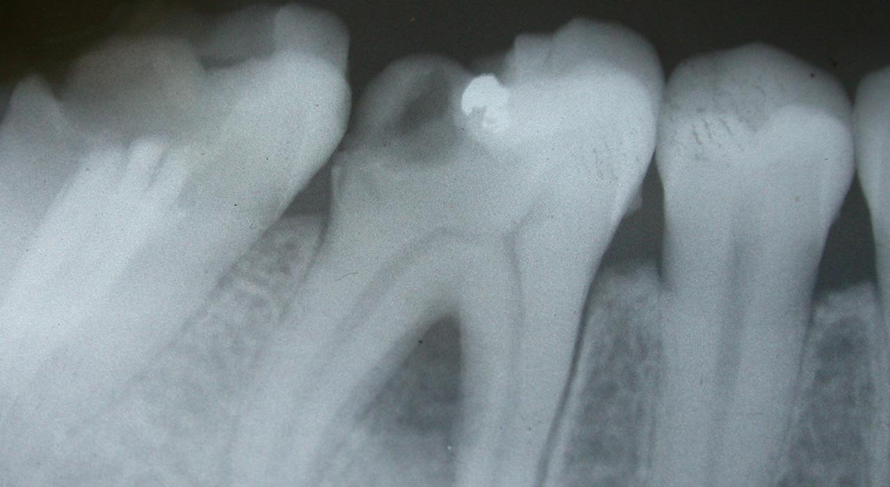 Diplomado en Traumatología Dentaria en Endodoncia