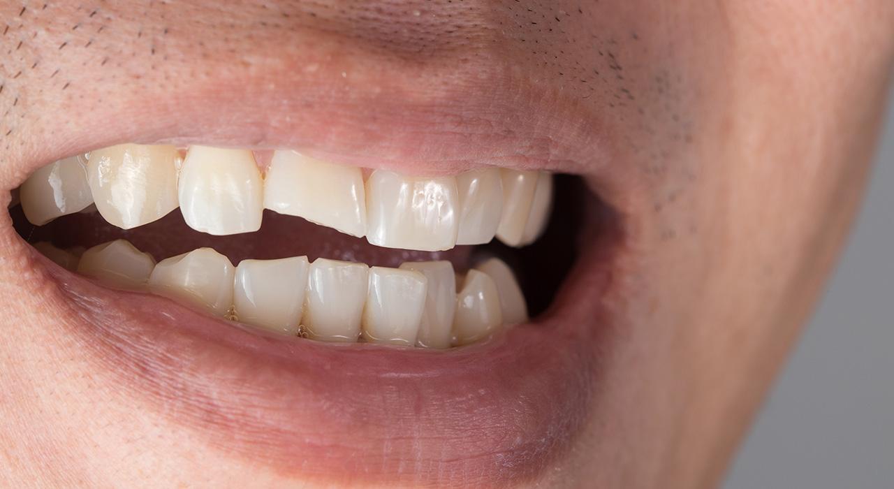 Posgrado en Traumatología Dentaria en Endodoncia