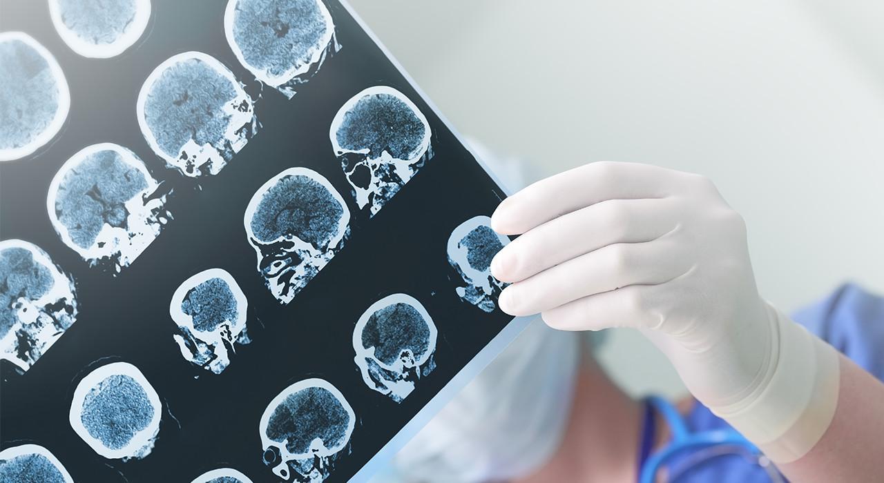 Formación en Neuroanatomía y Trastornos Mentales