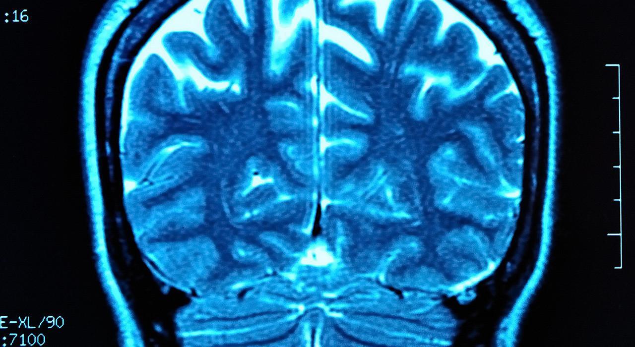 Programa en Neuroanatomía y Trastornos Mentales