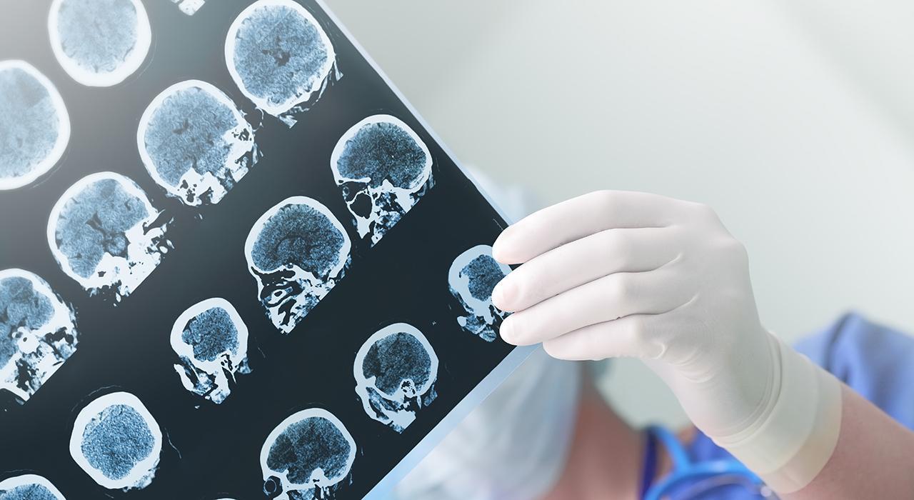 Posgrado en Neuropsicología Clínica