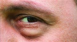posgrado actualización en oculoplástica y vías lagrimales