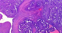 especializacion tumores huérfanos agnósticos y de origen desconocido