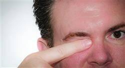 posgrado actualización en superficie ocular y córnea