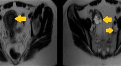 curso realidad de los tumores huérfanos agnósticos y de origen desconocido