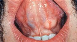 curso tumores de la pleura mediastino y pared torácica el cáncer de pulmón como paradigma de los nuevos tumores raros pero no huérfanos