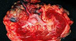 maestria urooncología