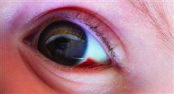 curso actualización en oftalmopediatría