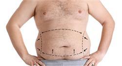 diplomado tratamiento quirúrgico de la obesidad