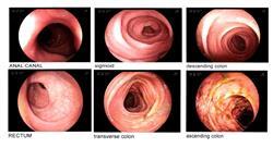 curso tumores digestivos infrecuentes tumores neuroendocrinos digestivos cáncer de tiroides