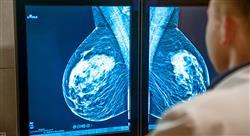 formacion tumores infrecuentes del área ginecológica tumores raros de la mama oncología genitourinaria de los tumores poco frecuentes