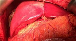 estudiar carcinoma hepatocelular y trasplante hepático