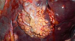 especializacion online patología hepática infecciosa y autoinmune