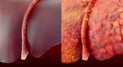 especializacion online las principales patologías hepáticas