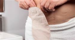 especializacion online Ostomías Digestivas de Alimentación, Intestinales y Urinarias para Enfermería