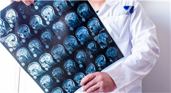 especializacion online neurocirugía: patología nervio periférico y vascular