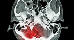 experto universitario neurocirugía: patología nervio periférico y vascular