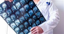 experto universitario patología tumoral y neurocirugía funcional